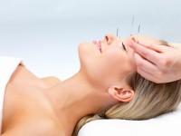 Akupunktur Medizin